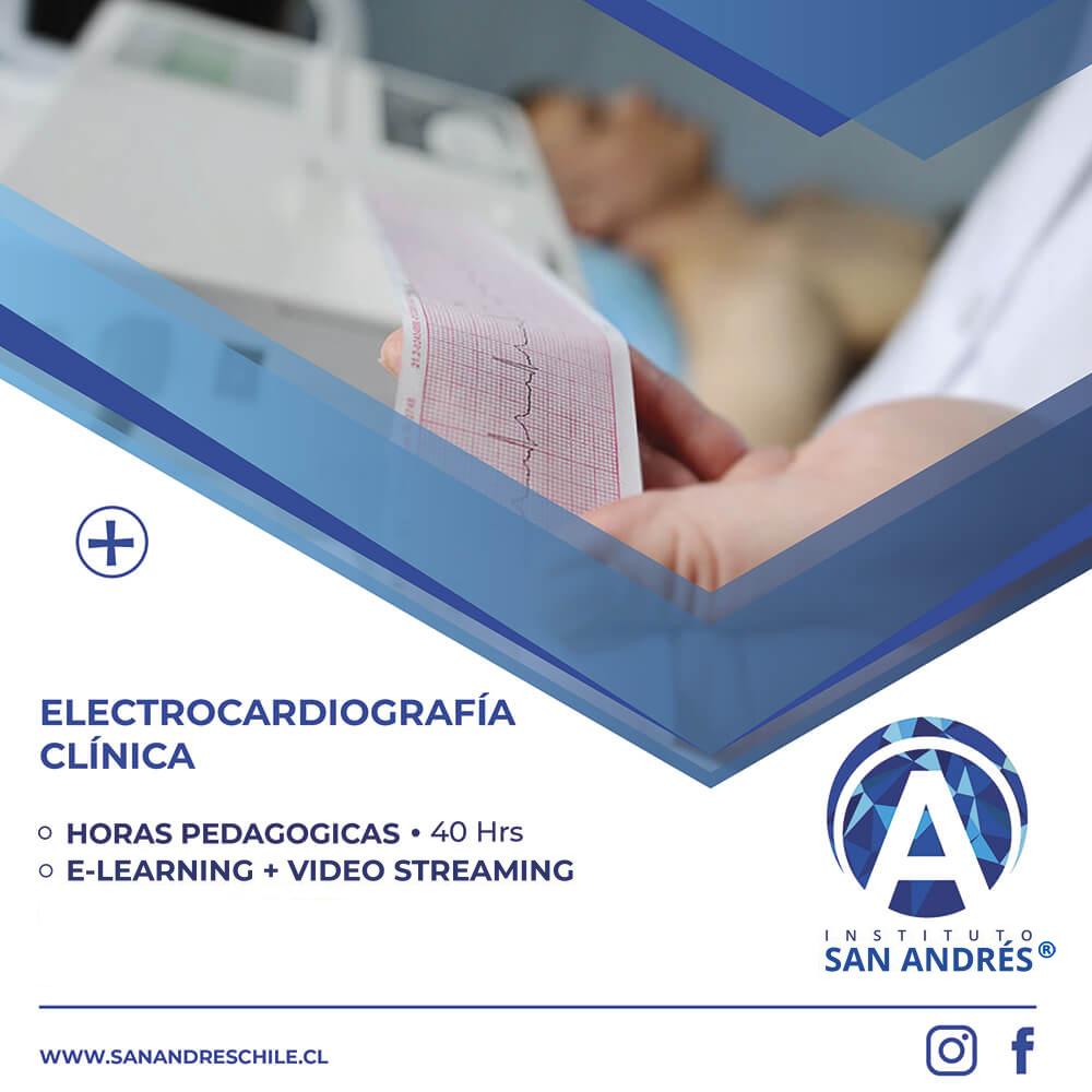 POST-ELECTROCARDIOGRAMA-22-1